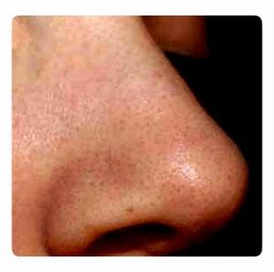 Как очистить и сузить поры на лице. Избавляемся от черных точек