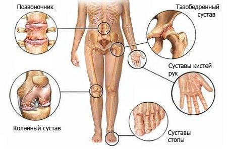 Здоровье суставов. Опасность артроза и артрита
