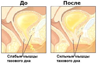 как тренировать мышцы вагины