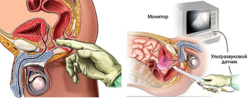 Можно ли делать физиопроцедуры при аденоме простаты