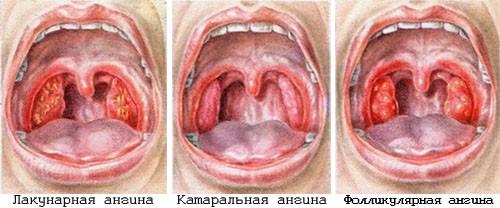 Тромбофлебит нижних конечностей лечение методы оперативного лечения