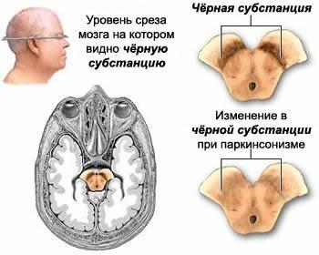 Картинки по запросу мрт болезнь паркинсона