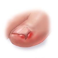 Что делать если врос ноготь на большом пальце ноги