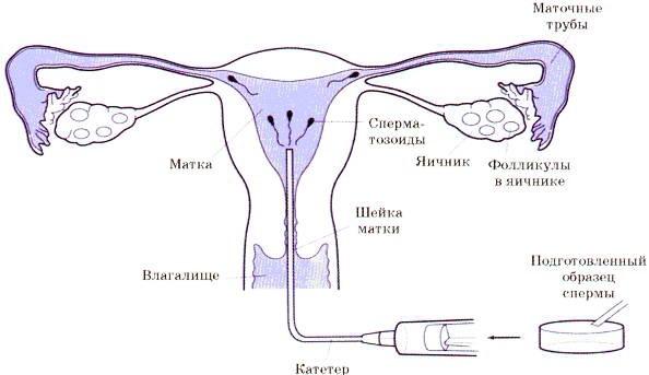 имеет несколько возможна ли беременность без маточных труб естественным путем