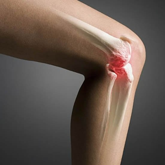 Ворсинчатый синовит коленного сустава алезан крем для суставов цена где купить в ростове