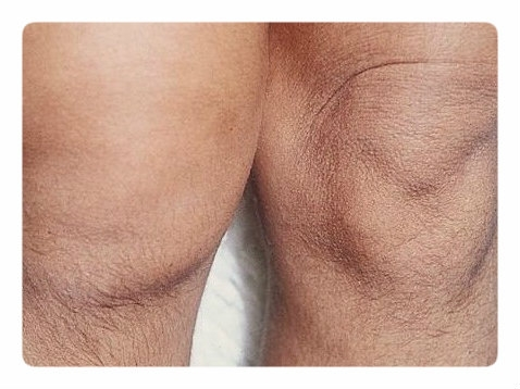 Лечение синовит с выпотом плюсне фалангового сустава можно ли работать бортпроводником с эндопротезом тазобедренного сустава