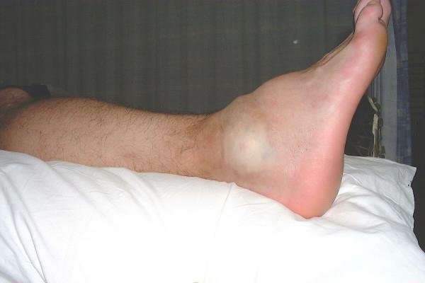 Ушиб ноги острая боль
