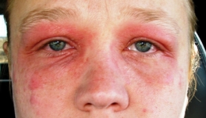 Приступ аллергии что делать