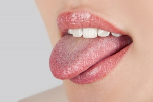 Налет на языке - это нормально?