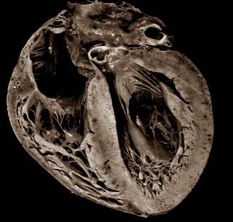 Сердце покойного бодибилдера весило почти килограмм